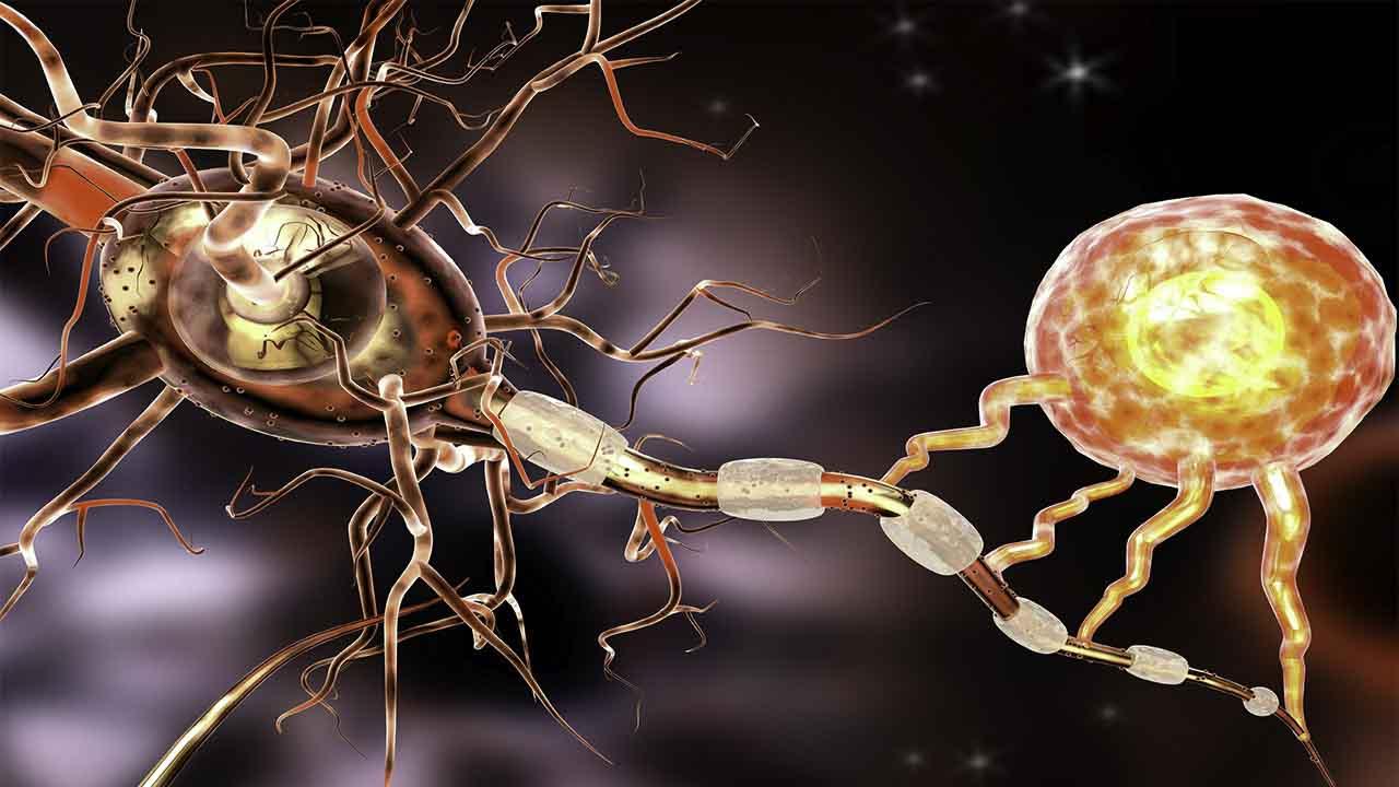 3d illustration of multiple sclerosis scientific