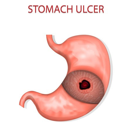 illustration of the stomach ulcers