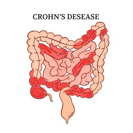 crohn's disease illustration on white background