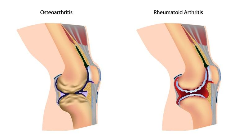 illustration of a common arthritis