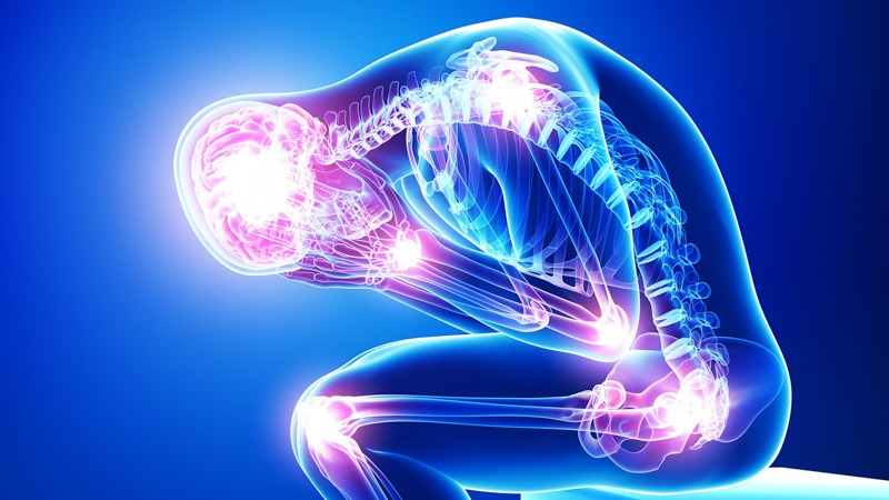 Skeletal Illustration of Person with Fibromyalgia Blue Background