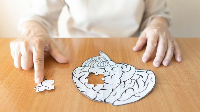 A Brain Puzzle Piece Taken from the Group- Sign of Dementia